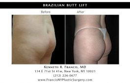 brazilian-butt-lift-nyc-before-after-case-1024-1