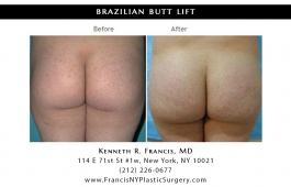 brazilian-butt-lift-nyc-before-after-case-1025-1