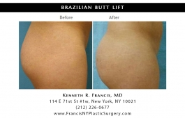 brazilian-butt-lift-nyc-before-after-case-1025-2