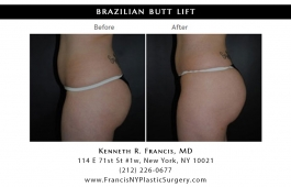 brazilian-butt-lift-nyc-before-after-case-1036-2