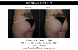 brazilian-butt-lift-nyc-before-after-case-1036-3