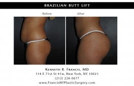 brazilian-butt-lift-nyc-before-after-case-1043-2